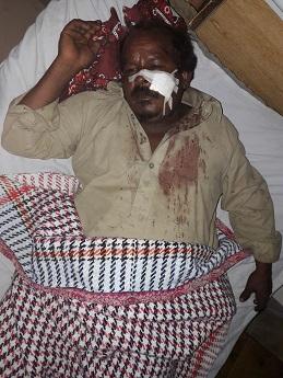 arif_masih_hospitalized